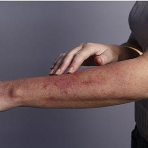 rash-on-arm-400x400-ck
